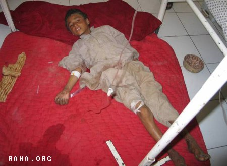 Victim of Girishk airstrike