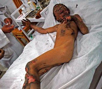 http://www.rawa.org/images/nato_victim2.jpg