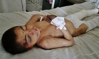 Victim of Baghran bombing