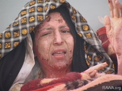 Gulbar was burnt by her husband in Badghis province