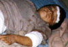 A child wounded in Jalalabad due to US bombardment of residential areas