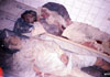 2 out of tens of civilians killed in by the US bombs laying in a hospital in Jalalabad