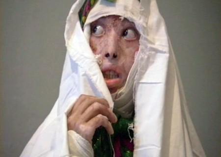 Self-Burning Among Afghan Women