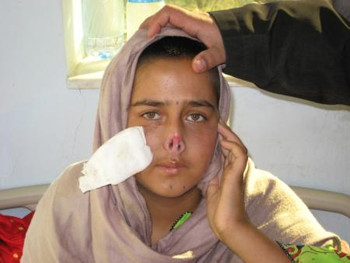 Afghan woman whose nose was cut by her husband