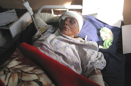 Wounded in Shah Wali Kot in early Nov 2008