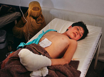 Injured Afghan boy