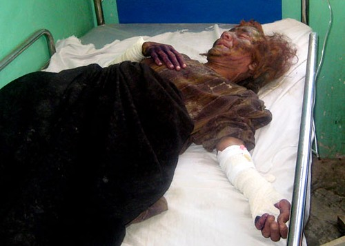 An injured Afghan woman from the Bala Baluk