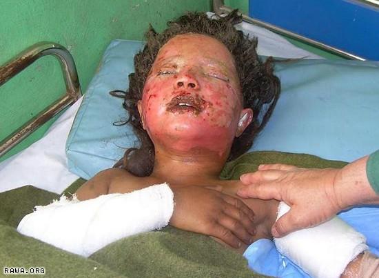 Injured girl in Farah.