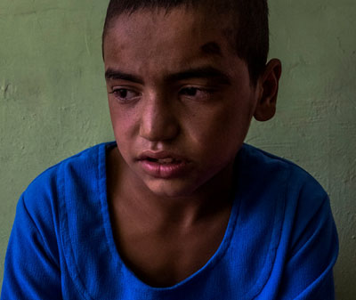 Wakil Ahmad, 10, who smoked opium with his family twice daily over the last year, was in a 45-day detoxification program