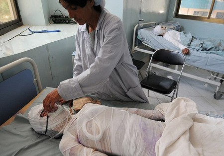 Burn Unit in Herat Regional Hospital