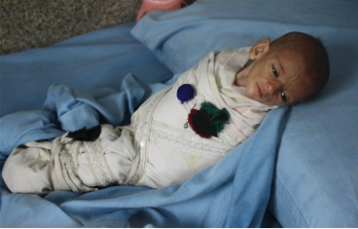 Three-month old Shukoria has severe malnutrition