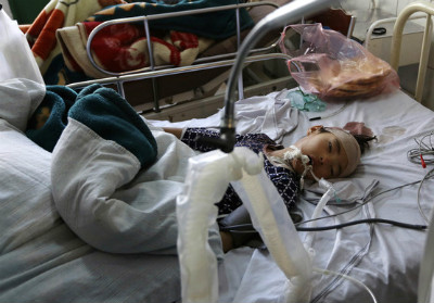 Afghan girl receives treatment after a militant attack on a Shiite shrine