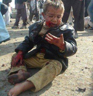 fghan child after an explosion