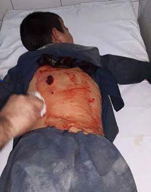 A child wounded by the shots fired by the Shorae Nezar men