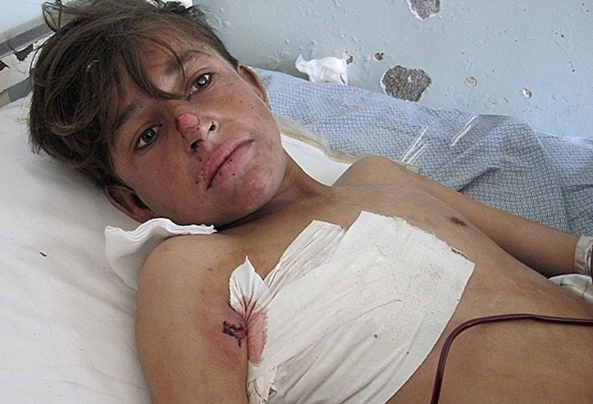 A wounded Afghan boy receives treatment at a hospital in Kunar province after being injured in NATO airstrike