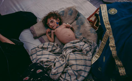 Severely malnourished Afghan child