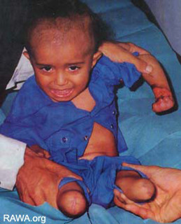 A child mine victim in Afghanistan