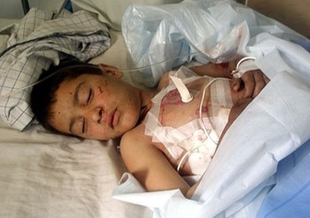 Boy wounded in suicide bomb