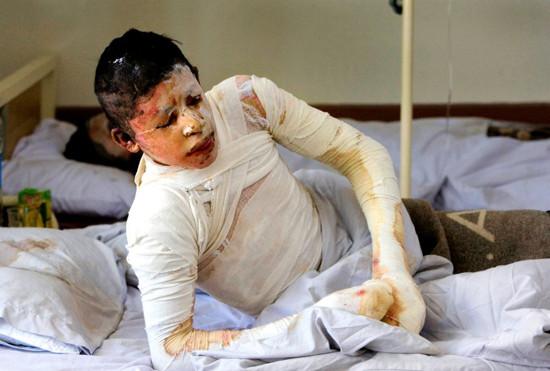 Kunduz bombing victim in hospital