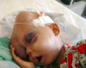 Effect of DU weapons on an Iraqi child