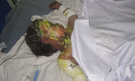 Farah air strike by NATO killed many including this boy