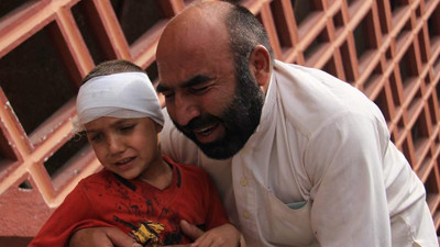 A boys is held by his father outside a hospital where he was treated after a suicide bomb attack April 18, 2015, in Jalalabad, Afghanistan