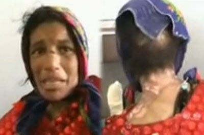 Fatima, Afghan woman tortured by husband