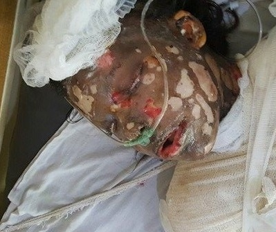Girl burned by brother in Kabul