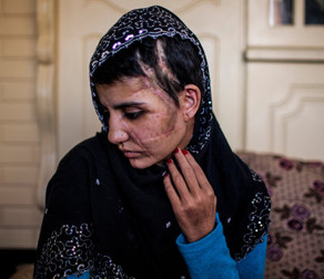 Gul Meena has been recovering in Kabul from a brutal ax attack three months ago
