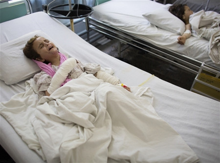 Gulalay, a six year old Afghan child, had both her legs blown off when she stepped on an improvised explosive device