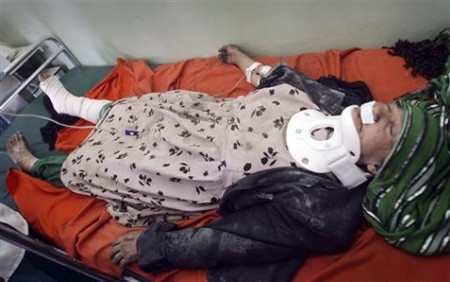 A female victim of a roadside bomb lies on a bed at a hospital in Herat