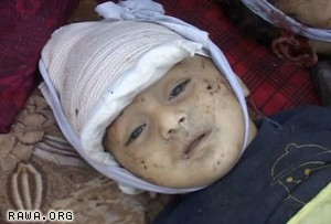 An Afghan child killed by US troops in Kabul on Sep.1, 2008