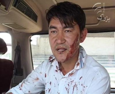 Hussain Nazari a reporter beat up by officials in Kabul