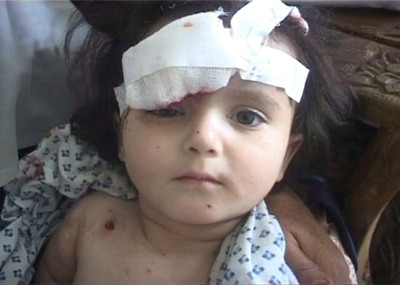 An Afghan child wounded in a suicide attack
