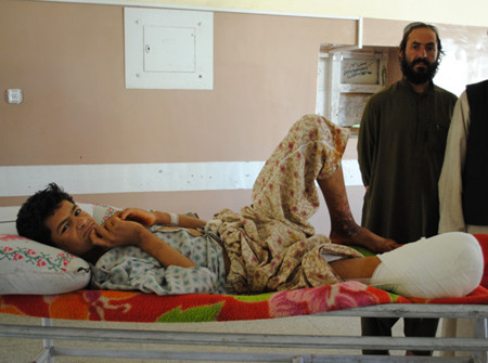 16-year-old Khalil lost his leg after tripping a Taliban improvised explosive device