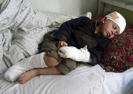A boy, injured during a NATO air strike