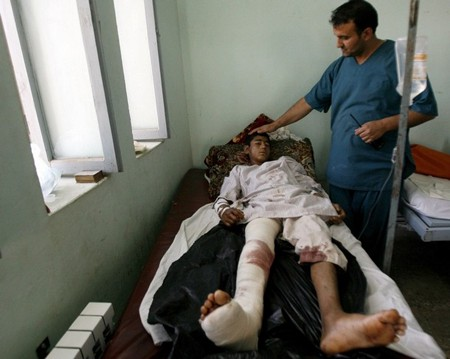Kunduz bombing victims in hospital