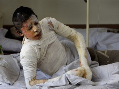 Another burn victim in Kunduz Hospital