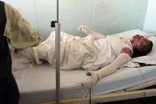 Burned victim of Kunduz bombing by NATO