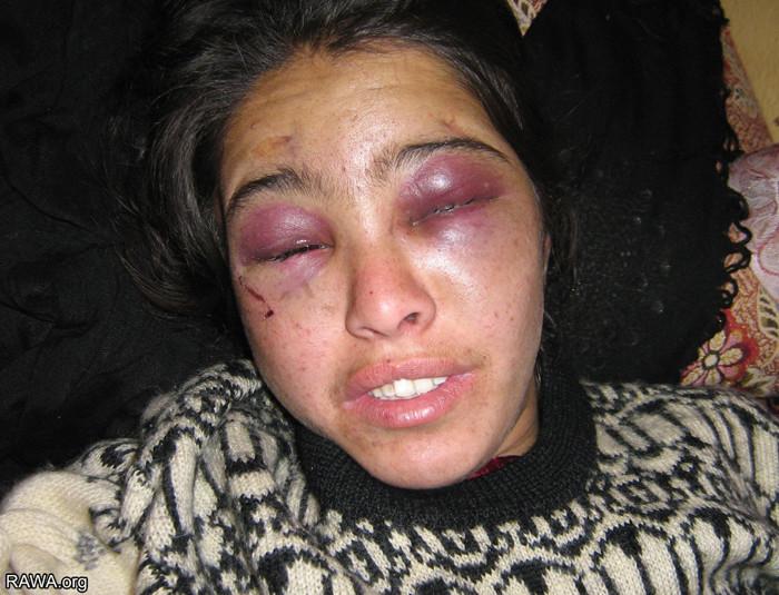 Manizha, a 20-year old woman who was beaten and tortured by her husband and his family
