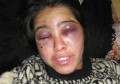 More than 5000 cases of violence against Afghan women recorded in six months