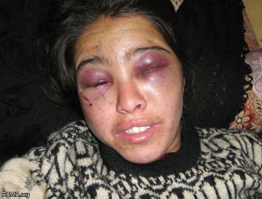 Manizha, a 20-year old woman, who was beaten and tortured by her husband and his family. She was kept in a dark basement and forced to work in the cold