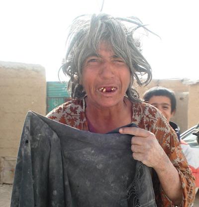 Mentally ill female beggar