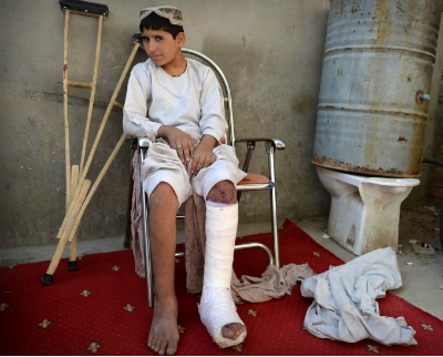 Mohammed stepped on an improvised bomb left in his family's home by insurgents during fighting over the summer