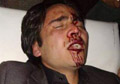Journalist injured, beaten unconscious in Balkh