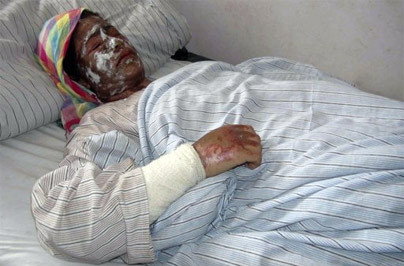 Mumtaz was attacked by a local warlord and his men with acid in Kunduz for refusing to marry him
