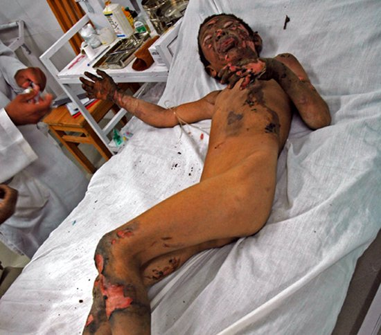 NATO bomb victims in Helmand