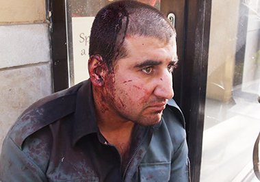 Policeman who was beaten by the bodyguards of Sarwar Danish the second VP