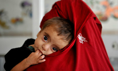 Afghanistan's children suffer from malnutrition