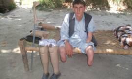 Qalam Gul handicapped in 1992-96 war